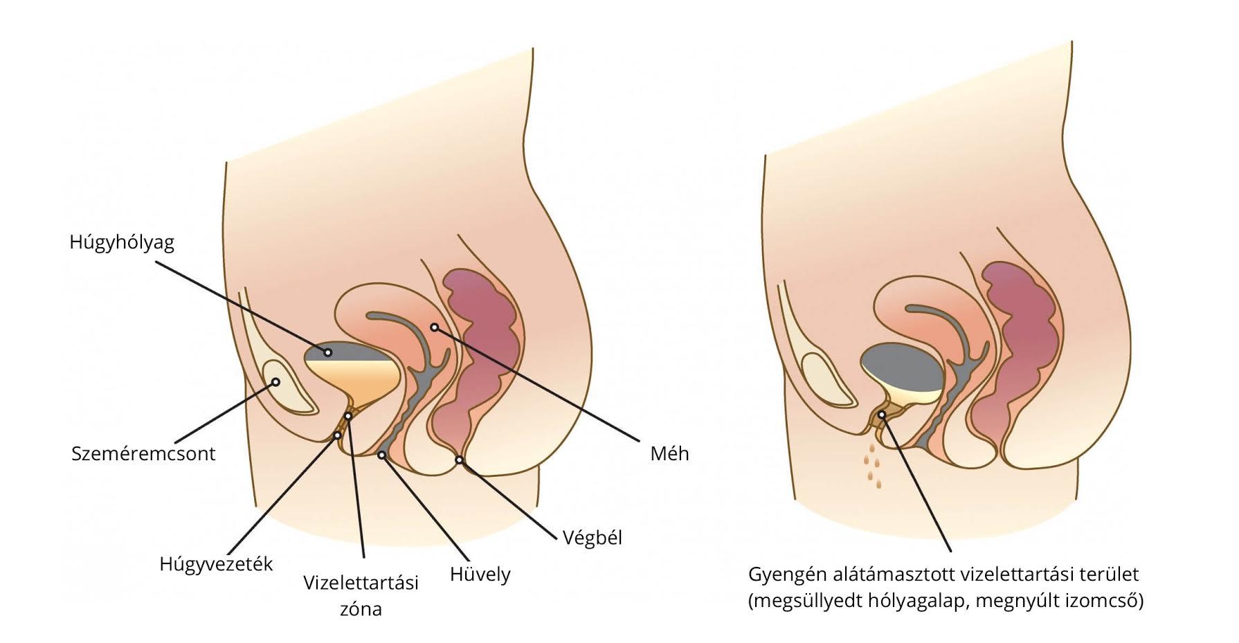 inkontinencia műtét)